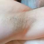 ブラジリアンワックス脱毛をリピートすると毛が細く柔らかくなる!