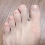 足の指毛はとっても不人気…らしい