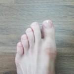 足の爪は伸ばし続けるといつの間にかなくなる