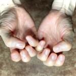 毛抜きで処理すると痛い指毛脱毛はワックスがオススメ