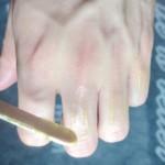 指毛・手の甲の脱毛ってどのくらい痛いの?