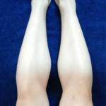【脚ワックス脱毛】スネ・ひざ・ふともも・足の甲…一番痛いのはどの部位?