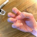 アルコールの手指消毒による肌荒れがひどい