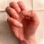 乾燥と消毒剤と栄養不足で爪がボロボロです